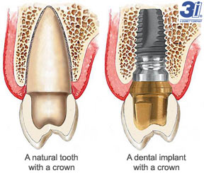 3i Dental Implants