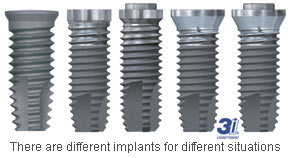 3i different implants