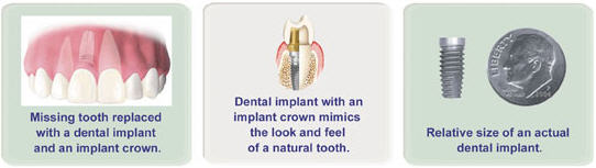 3i Dental Implant examples