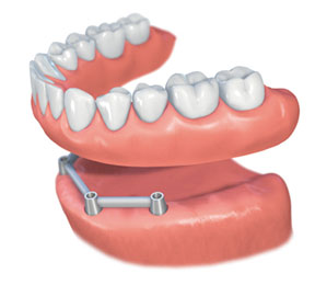 Straumann-implant-bar.jpg