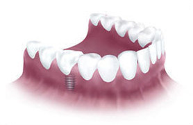 Bridge tooth attached to implant