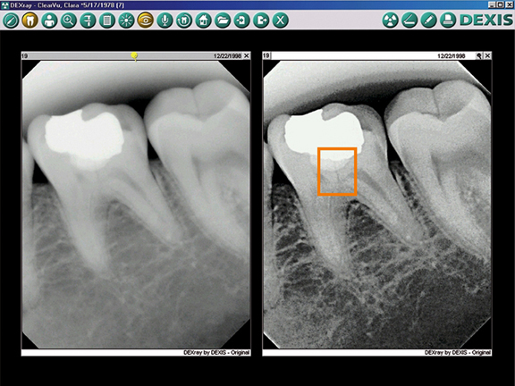 DEXIS Digital X Rays - Dentist Glendora, CA - Dental