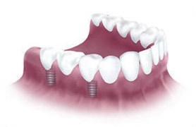 Implanted dentures