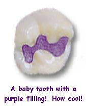 A baby tooth with a purple filling