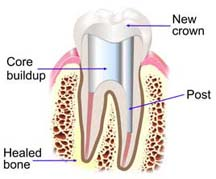 Root canal tooth restoration