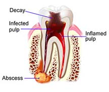 Decaying tooth