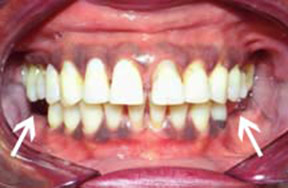 Denture Before