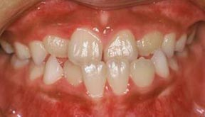 Orthodontic Before