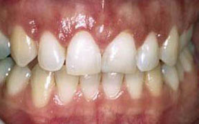 Periodontal After