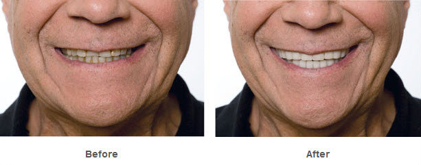 Snap On Smile bruxism
