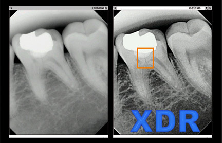 XDR X-ray