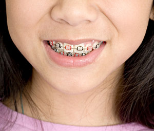 Child With Braces Smiling