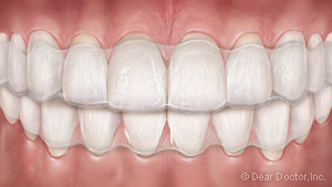 Clear Orthodontic Aligners Jacksonville, FL