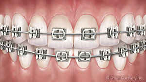 Orthodontics in Worth, IL also serving Palos Heights, Palos Park, Oak Lawn and Chicago Ridge, IL