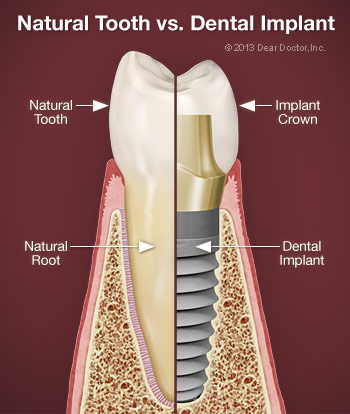 Natural tooth vs dental implants.