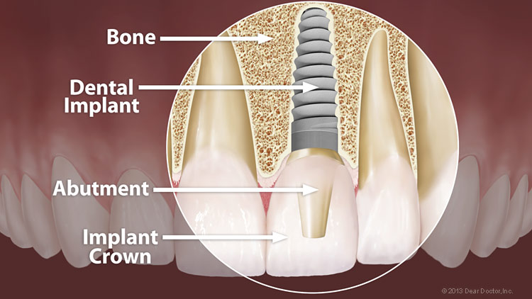 Implants - General and Cosmetic Dentist