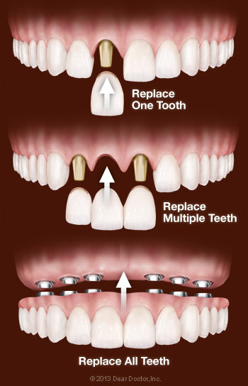 Dental Implant Treatment Options.