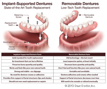 Implant supported dentures vs removable dentures.
