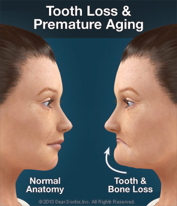 Tooth loss and premature aging.