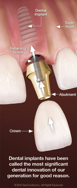 Dental implant components.