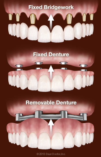 Options for replacing all teeth with dental implants.