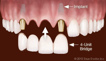 Replacing Multiple Teeth With Dental Implants.