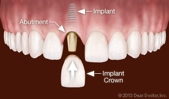 Replacing One Tooth With a Dental Implant.