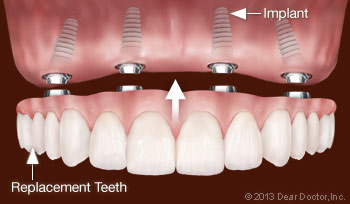 Replacing all teeth with dental implants.