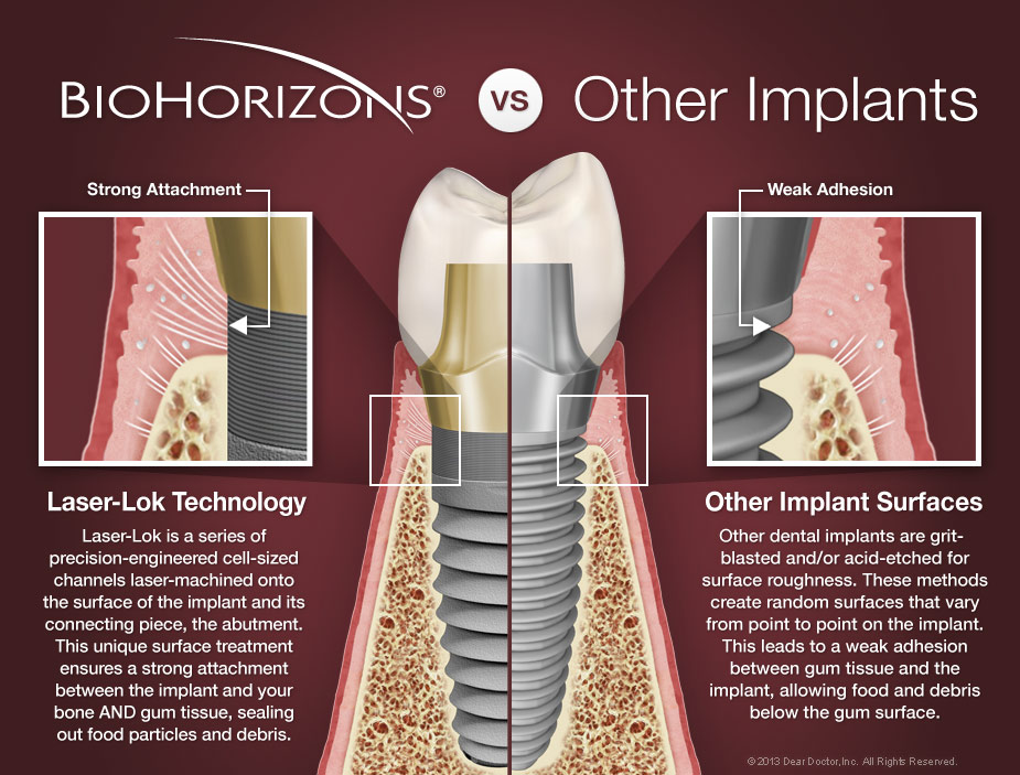 Why Our Office Uses Biohorizons Dental Implants