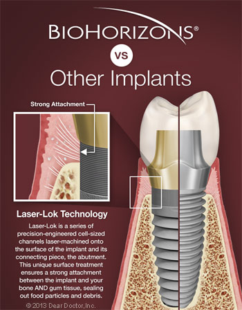 BioHorizons dental implants vs competitors.