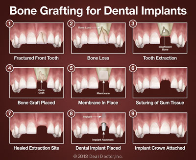 Extractions Bone Grafting Westlake Periodontics OH