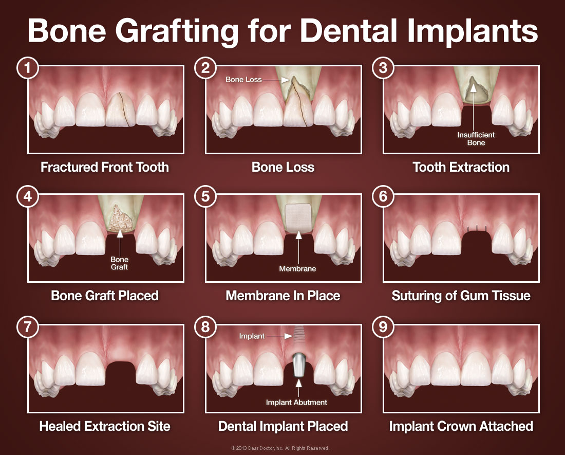 Bone Grafting - Tallahassee and Marianna, FL - Maxillofacial