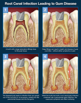 Root canal infection leading to gum disease.