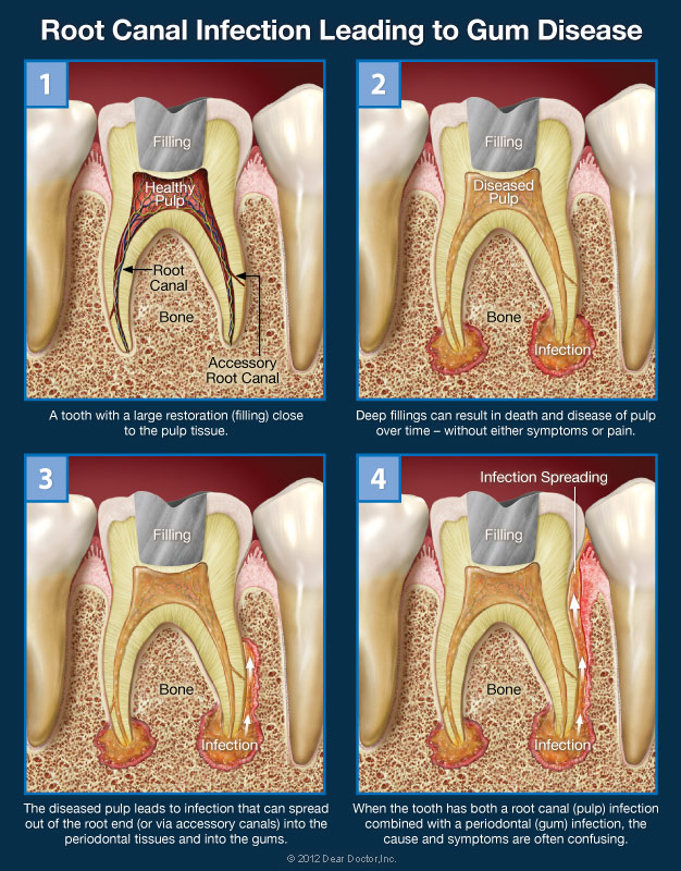 Combined Root Canal Gum Problems Dentist In San Leandro Ca
