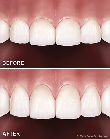Cosmetic gum surgery.