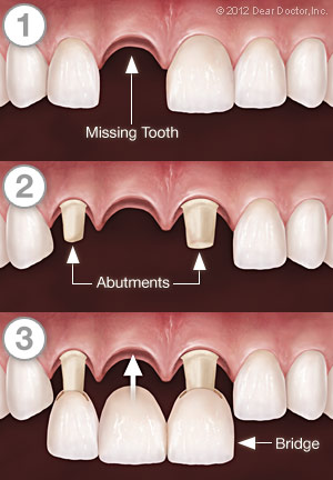 Dental Bridgework - Step by Step - Eau Claire WI Dentist