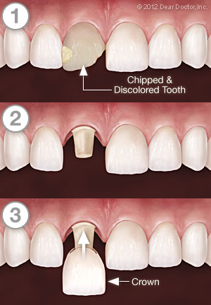 Dental Crowns - Step by Step - Dentist Eau Claire WI