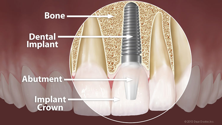 Dental Implants in Naperville, IL