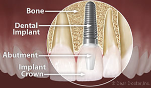 Dental Implant Pleasant Hill, CA