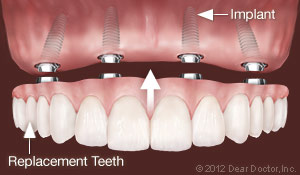 Dental Implants Replacing All Teeth | Morrisville, NC Dentist