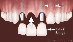 Fargo, ND Dental Implants Replace Multiple Teeth.