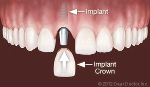 Dental Implants Replace One Tooth