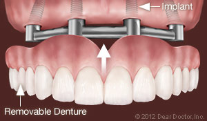 Implant Dental Support Removable Dentures Fort Myers FL