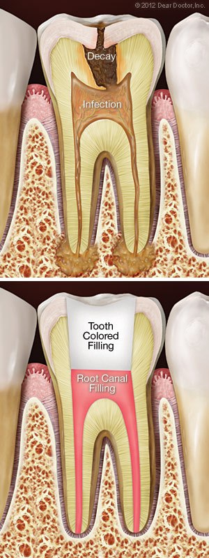 Root canal treatment.