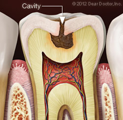 Cavity Fillings in the Chicago Loop