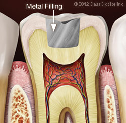 Metal Filling | Cary, NC Dentist