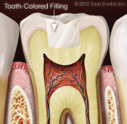 Tooth-Colored Filling | Dr. Mary A. Merlo-Murison in the Chicago Loop
