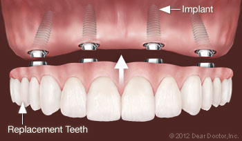 All-on-Four Implant Dentures