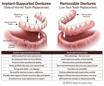 Implant supported fixed dentures vs removable dentures.