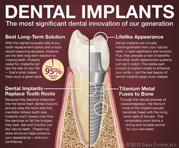Dental Implants 101.